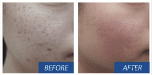 Dermapen Treatment of Acne Scars Before and After