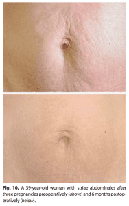 Stretch marks from pregnancy, 6 months after treatment.