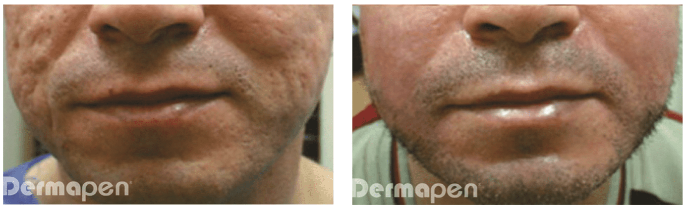 Treatment with Dermapen (TM) every 6 weeks for 6 treatments.